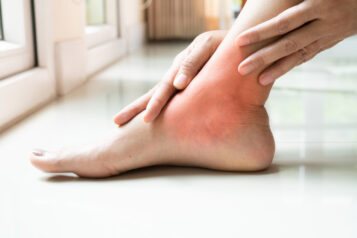 Kobieta trzyma się zabolącą stopę. Ortopeda stóp, czymoże jednak podolog?