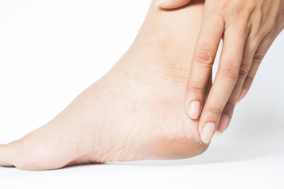 Kobieta trzyma się za piętę. Metody leczenia ostrogi piętowej i przyczyny jej powstawania