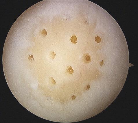 Obraz artroskopowy ogniskowego uszkodzenia chrząstki zwykonanymi mikrozłamaniami.