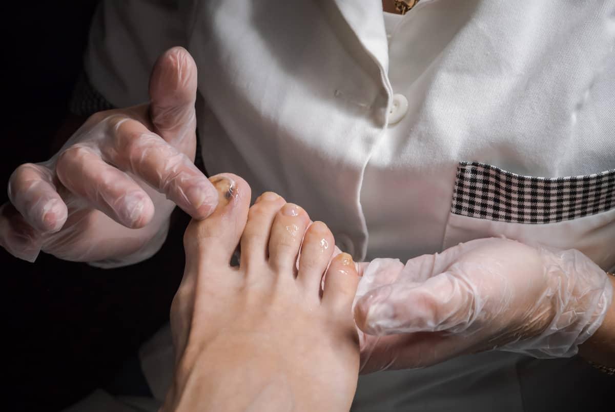 Podolog bada stopę pacjenta. Ortopeda stóp, czymoże jednak podolog?