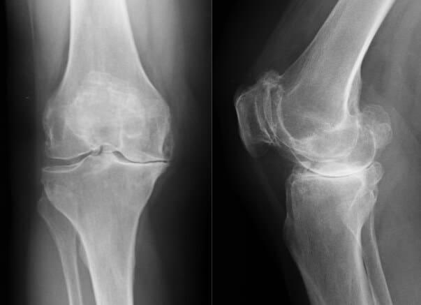 Zdjęcie rtg stawu kolanowego z zaawansowanymi zmianami zwyrodnieniowymi. Endoproteza stawu kolanowego - jak opóźnić konieczność jej wszczepienia