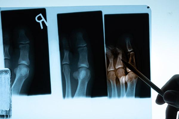 ortopedia-leczenie-zlaman-01