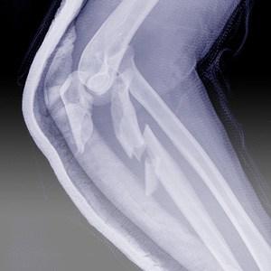 ortopedia-leczenie-zlaman-kwadrat-300