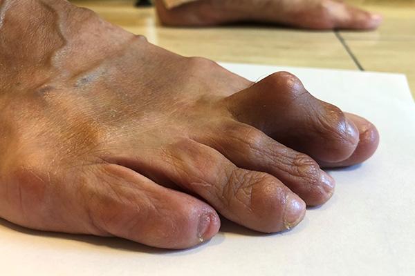 ortopedia-stopa-palce-mlotkowate-01