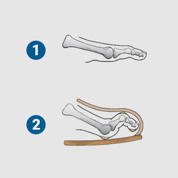 ortopedia-stopa-palce-mlotkowate-02