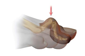 ortopedia-stopa-palce-mlotkowate-03