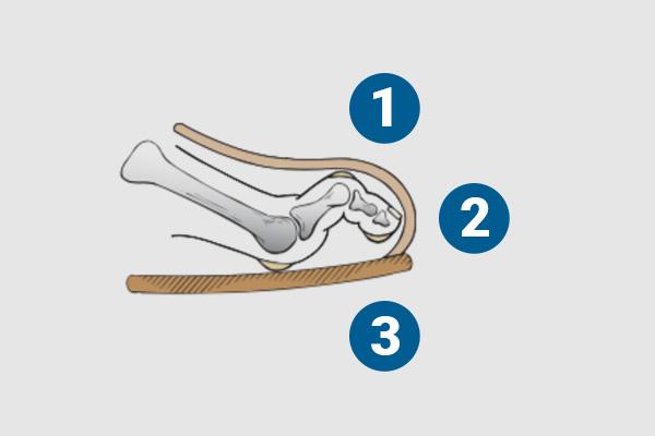 ortopedia-stopa-palce-mlotkowate-06