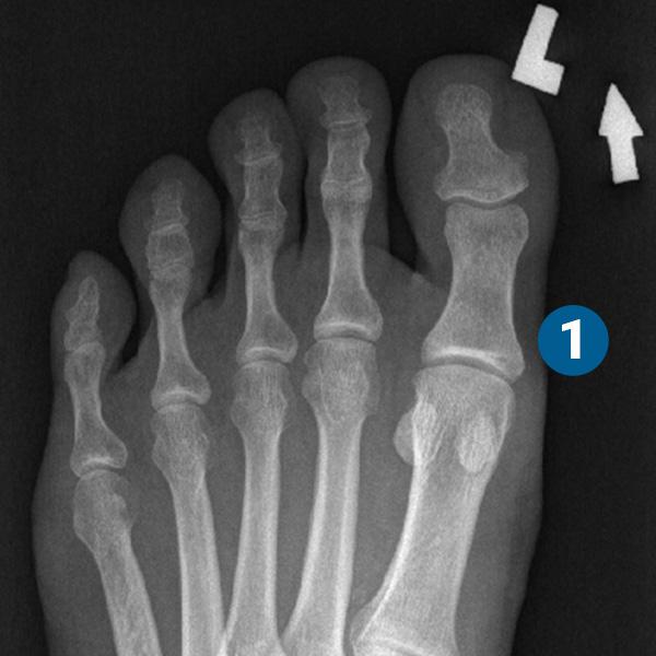ortopedia-stopa-paluch-koslawy-02