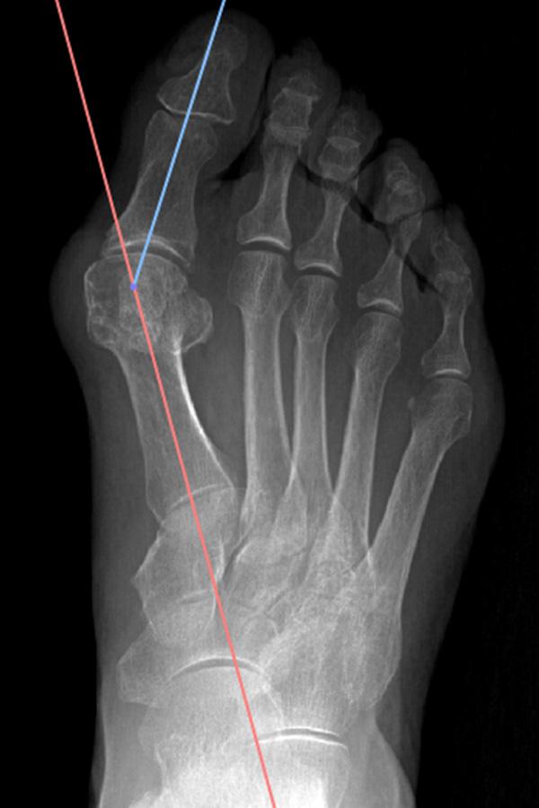 ortopedia-stopa-paluch-koslawy-05