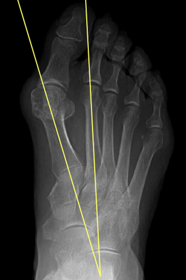 ortopedia-stopa-paluch-koslawy-06