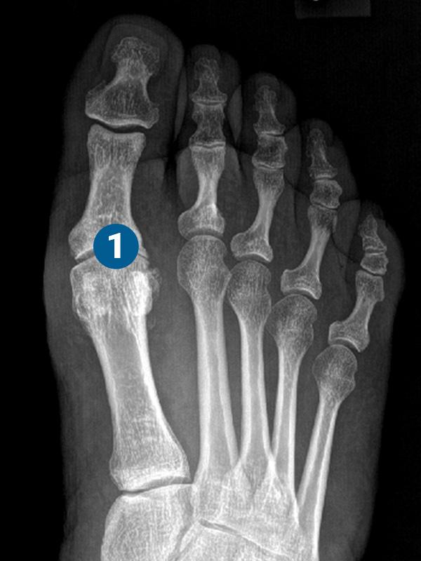 ortopedia-stopa-paluch-sztywny-01