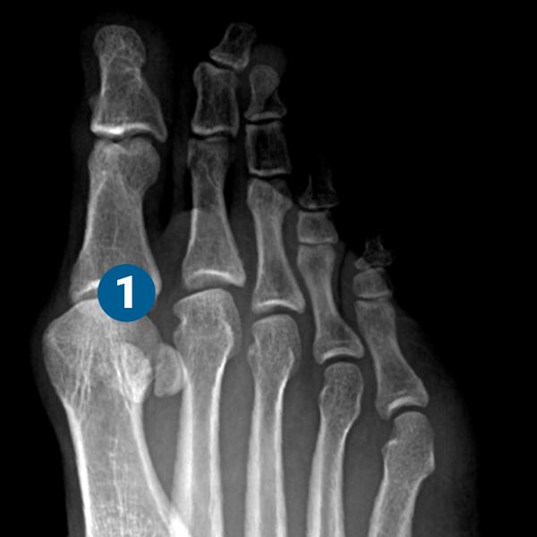 ortopedia-stopa-paluch-sztywny-05