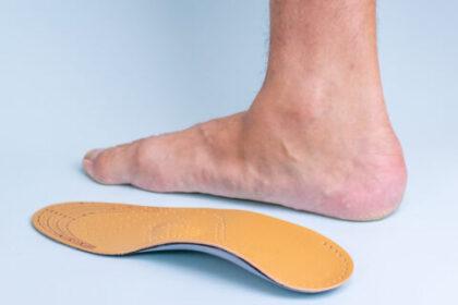 Stopa płasko-koślawa, której leczeniem zajmuje się ortopedia stóp